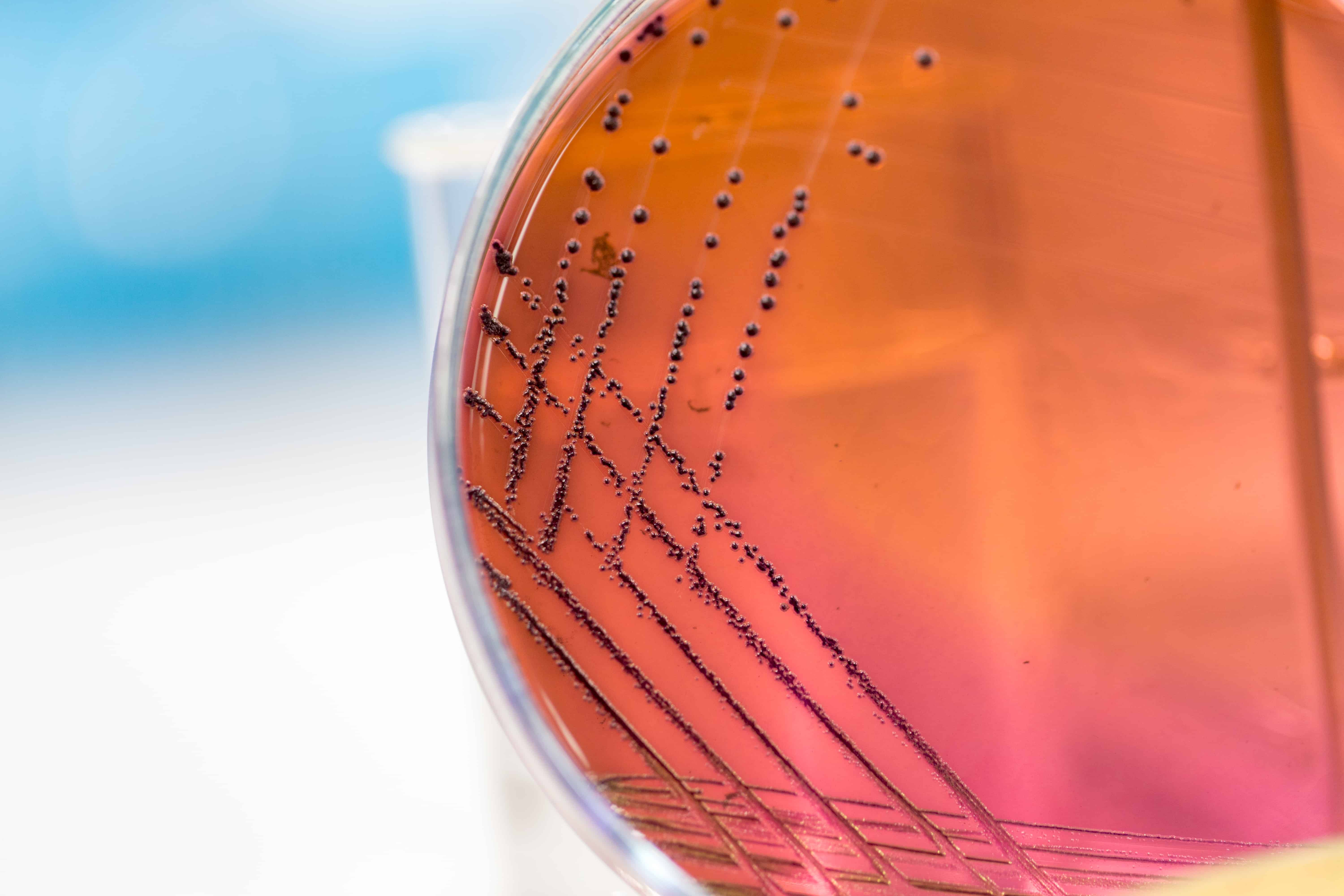 Weekly Digest: Resistant Klebsiella and E. coli widespread across Southeast Asia; Global measles cases have tripled since last year; Antibiotic use increases odds of rheumatoid arthritis.