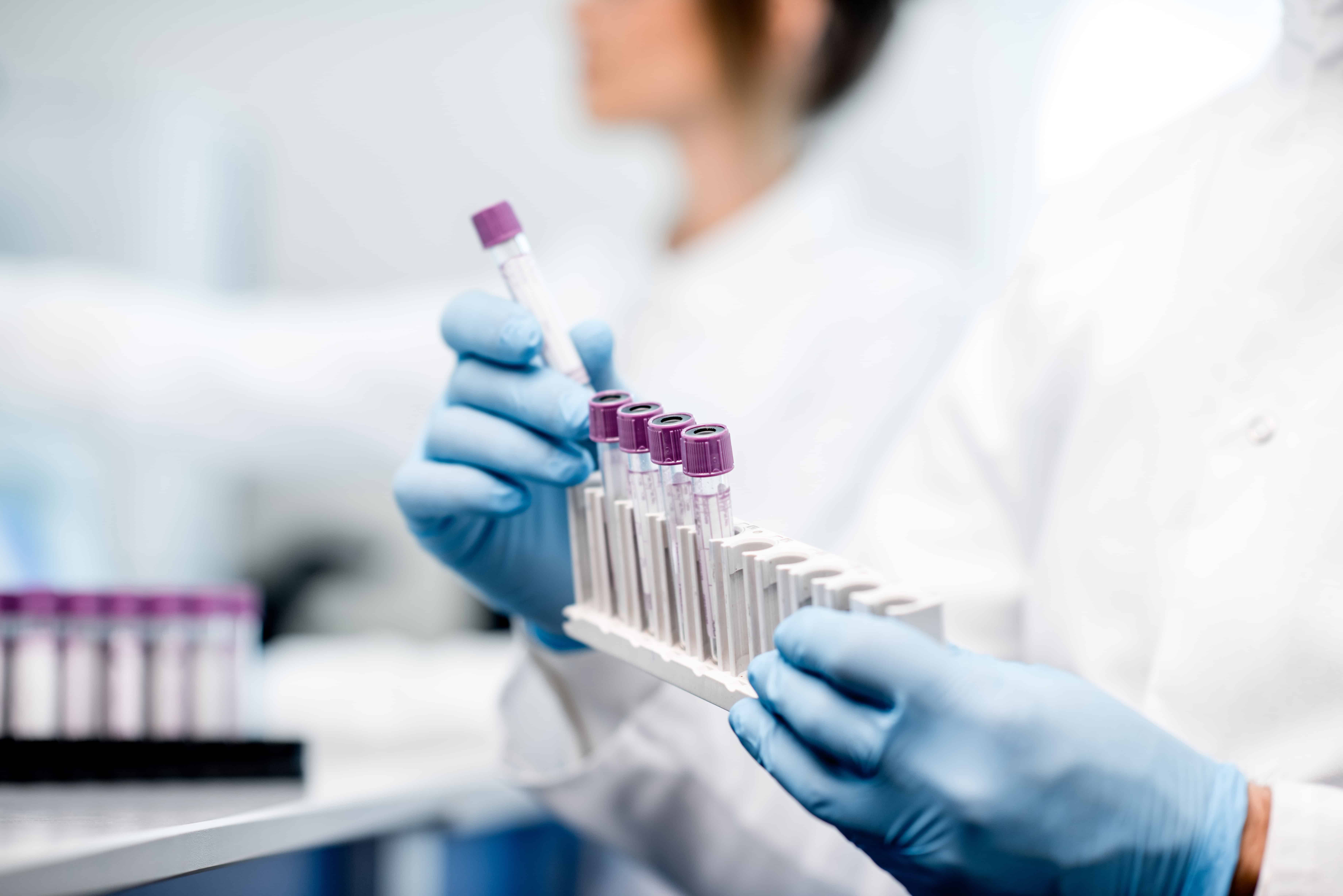 Weekly Digest: Pooled COVID-19 tests could help scale up testing & identify disease hotspots; Study reports drop in incidence of MDR infections in US hospitals; Pre-symptomatic COVID-19 transmission in Singapore.